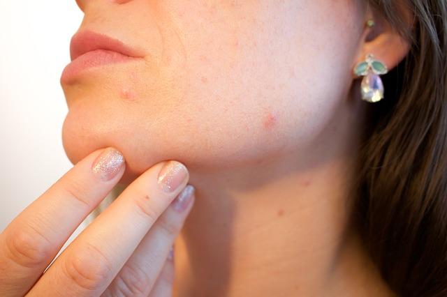 acne-1606765_640.jpg